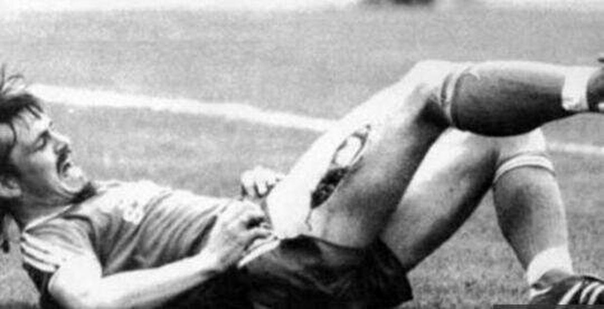 وحشتناکترین آسیب تاریخ فوتبال!+عکس